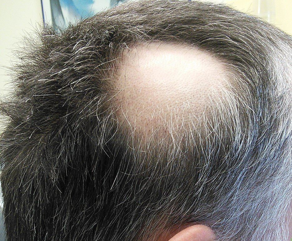 Alopecia_areata-1.jpg